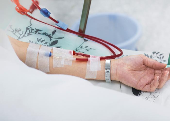 Réalisation de dialyse péritonéale